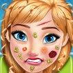 Anna'nın Yüz Tedavisi